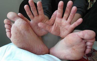 complications du diabète maladie sucre mains pieds